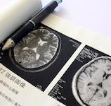 認知症予防相談